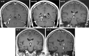 worm in brain